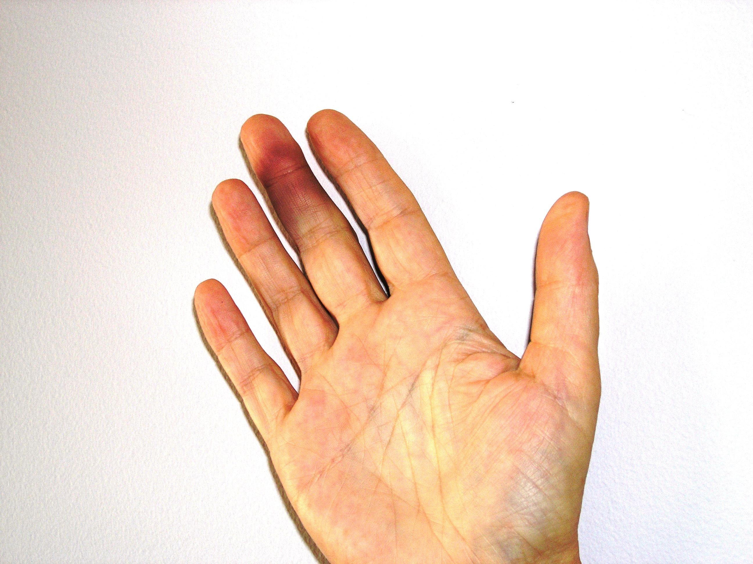 Black finger